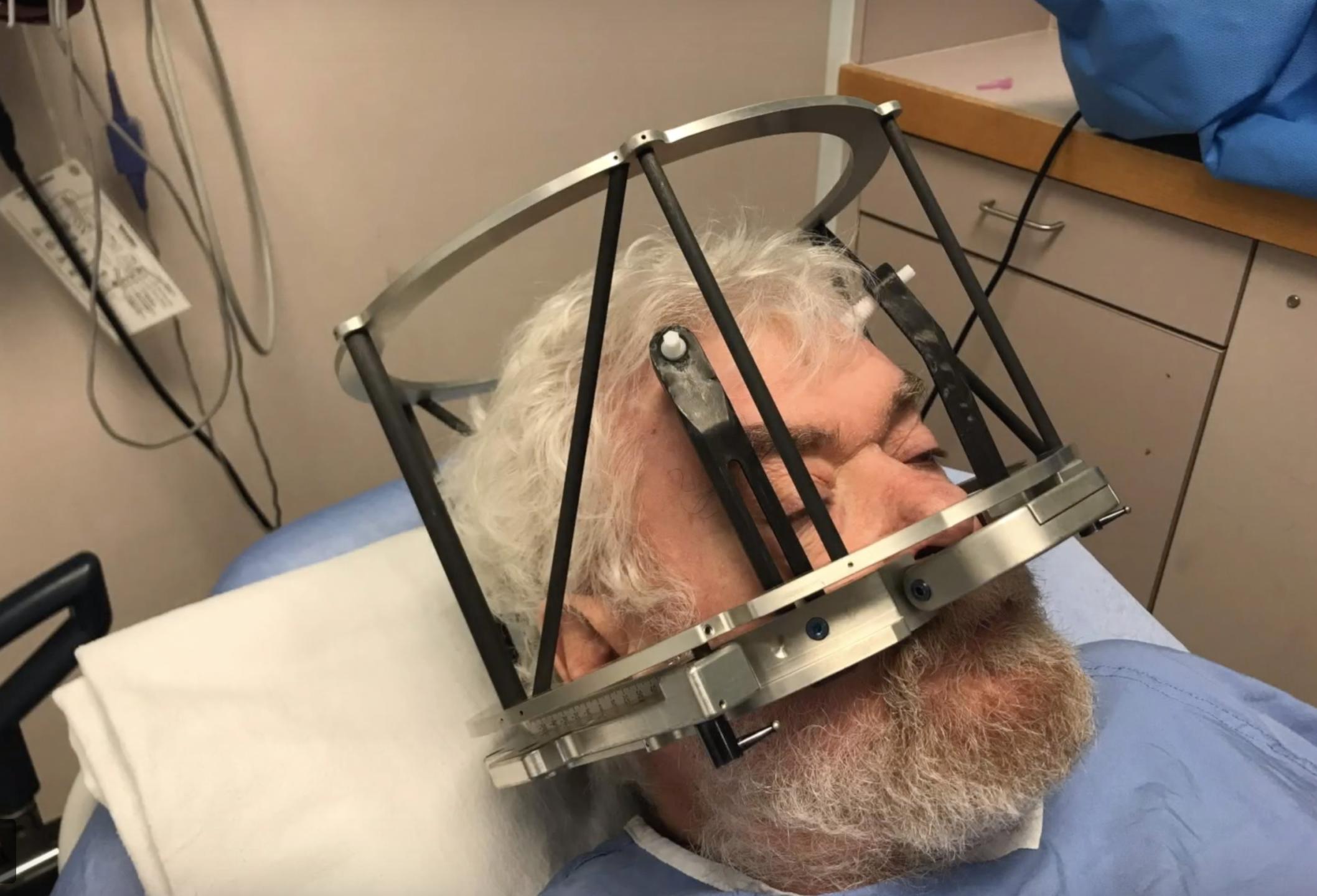 Un implante cerebral podría combatir tu alcoholismo (y están buscando voluntarios)