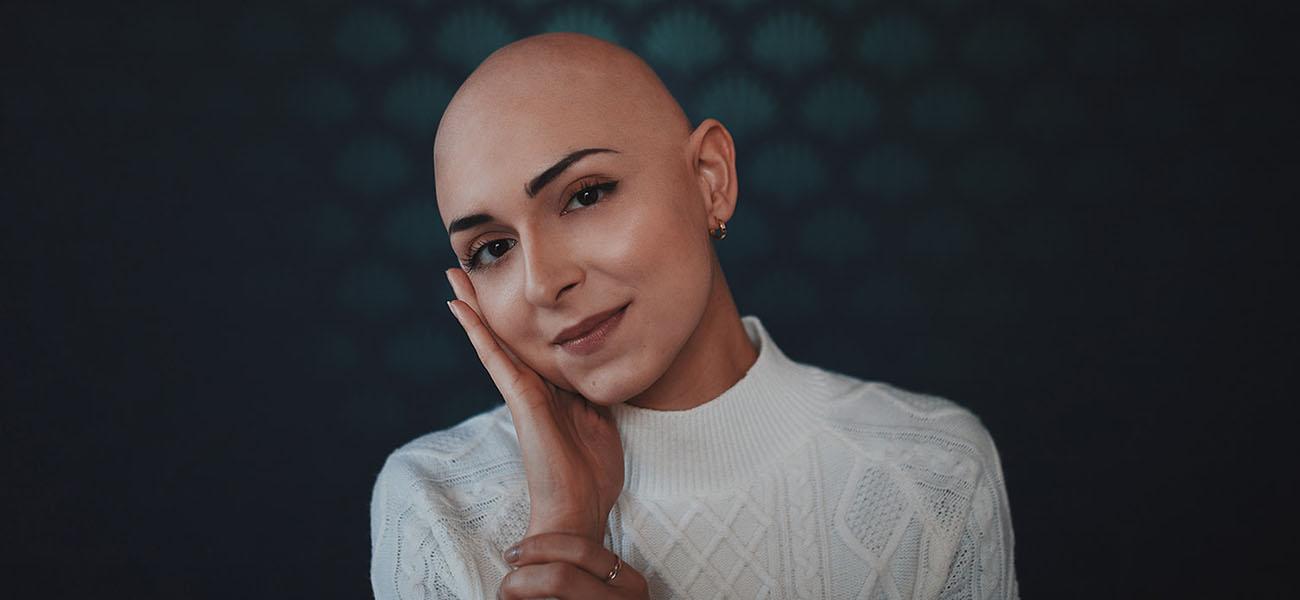 """""""Ser calva no te hace menos femenina"""": la historia de Elodie y su alopecia"""