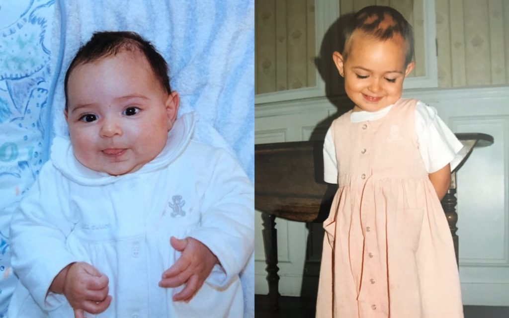 Elodie_bebé_alopecia_mujeres